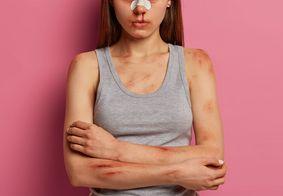 Na última semana, a legislação contra violência doméstica ficou mais rígida para agressores.