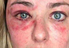 Campeã do MasterChef sofre acidente de esqui e mostra rosto todo machucado