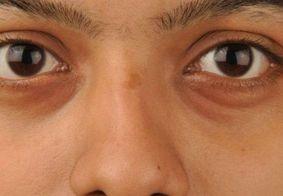 Aprenda técnicas de maquiagem para disfarçar olheiras