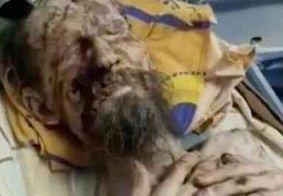 Vivo, homem é encontrado em estado de 'múmia' após ser mantido refém de urso