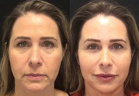 Xuxa critica harmonização facial de ex-Paquita Andréa Sorvetão