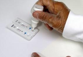 Vídeo: entenda a diferença entre testes sorológicos e testes rápidos