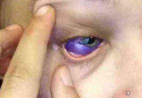 Após infecção, modelo que teve olho tatuado quer retirar globo ocular