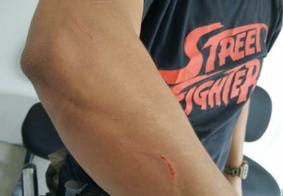 Vídeo: homem acusado de agredir mãe idosa reage à prisão e morde policial