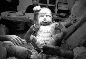 """Bebê vem ao mundo com """"pose"""" do Superman e chama atenção dos internautas"""