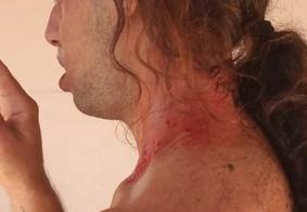 Irmão de repórter da Globo é agredido por sete homens e denuncia homofobia