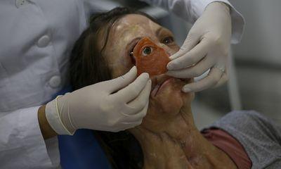 Denise Vicentin é uma das pacientes atendidas pelo Instituto Mais Identidade