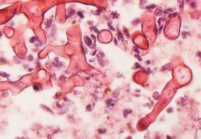 Novo caso suspeito de mucormicose é identificado em Mato Grosso do Sul