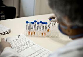 Testagem de Covid-19 na UFPB começa nesta terça (26)
