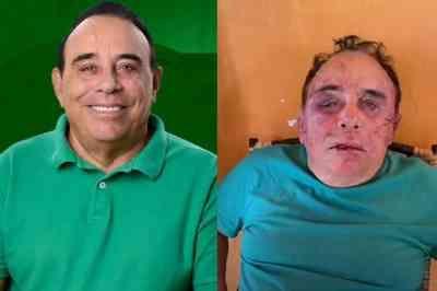 Polícia acredita que candidato a prefeito foi espancado durante assalto e descarta crime político