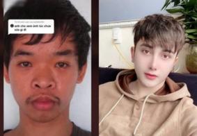 Jovem faz dez plásticas após ter emprego negado por aparência