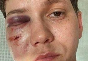 """Karol Eller, defensora do governo Bolsonaro, sofre ataque homofóbico: """"Orem por mim"""""""