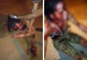 Câmera flagra travesti sendo agredida com facão em RR; suspeitos foram liberados