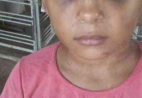 Mulher grávida é presa suspeita de agressão contra enteada na Paraíba